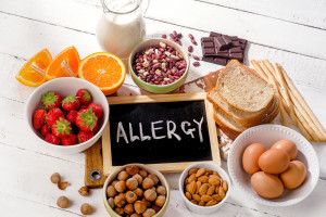 63649636 - food allergy. allergic food on  wooden background. view from above